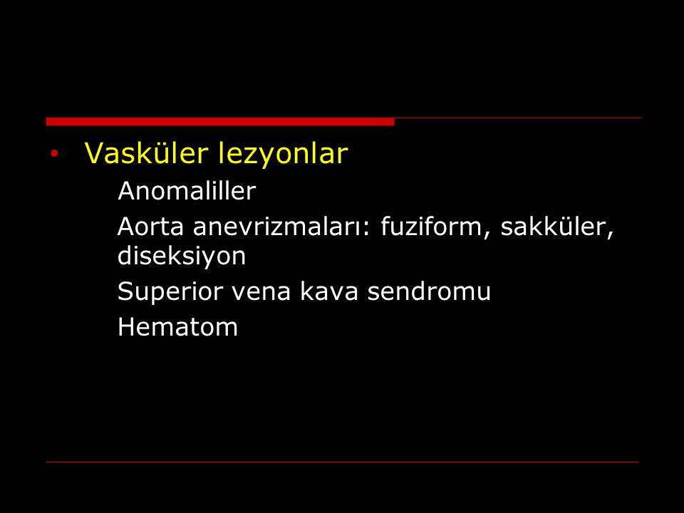 Vasküler lezyonlar Anomaliller