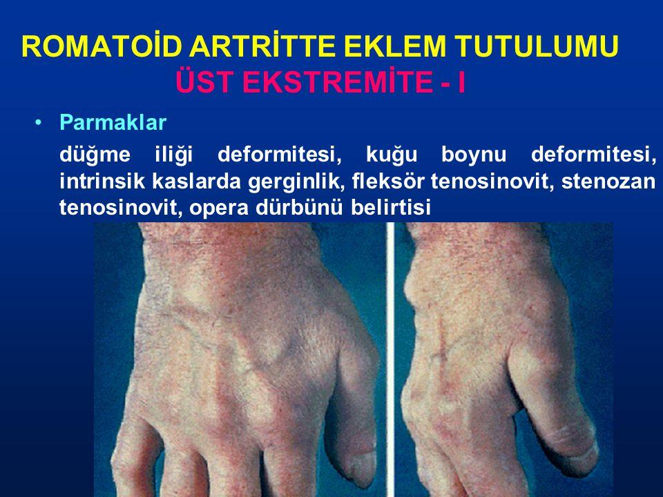 ROMATOİD ARTRİTTE EKLEM TUTULUMU ÜST EKSTREMİTE - I