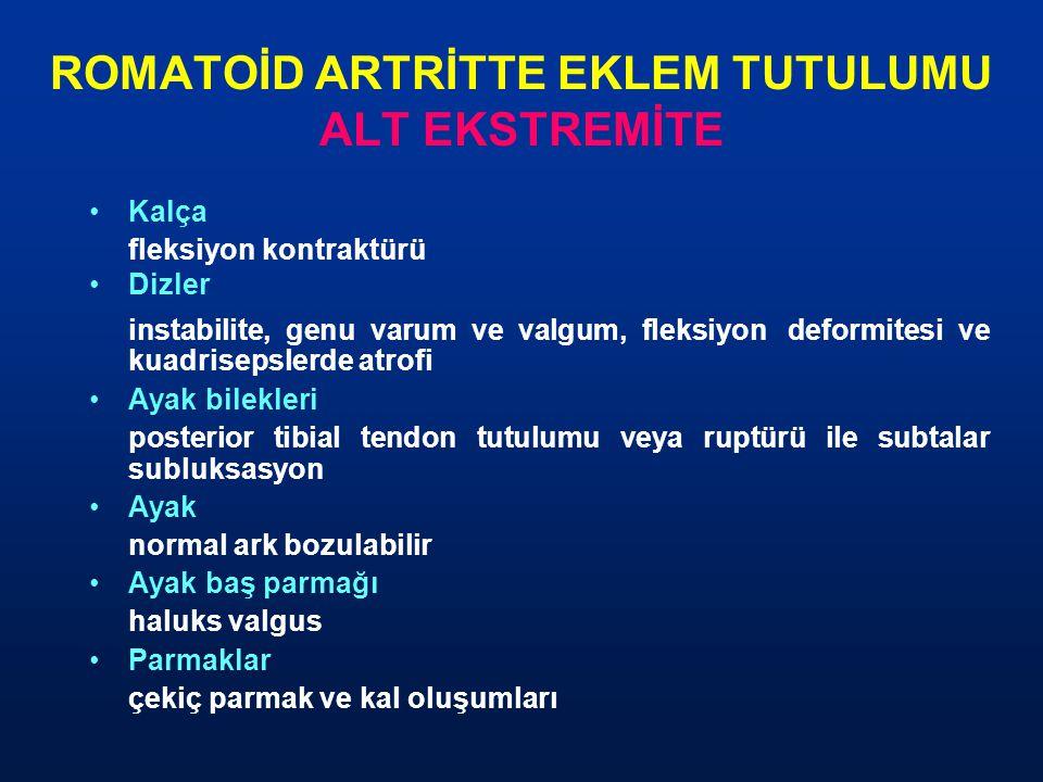 ROMATOİD ARTRİTTE EKLEM TUTULUMU ALT EKSTREMİTE