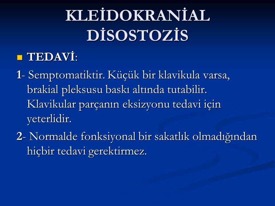 KLEİDOKRANİAL DİSOSTOZİS