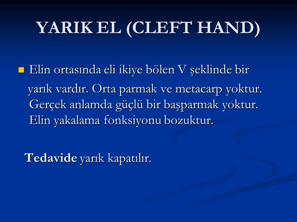 YARIK EL (CLEFT HAND) Elin ortasında eli ikiye bölen V şeklinde bir