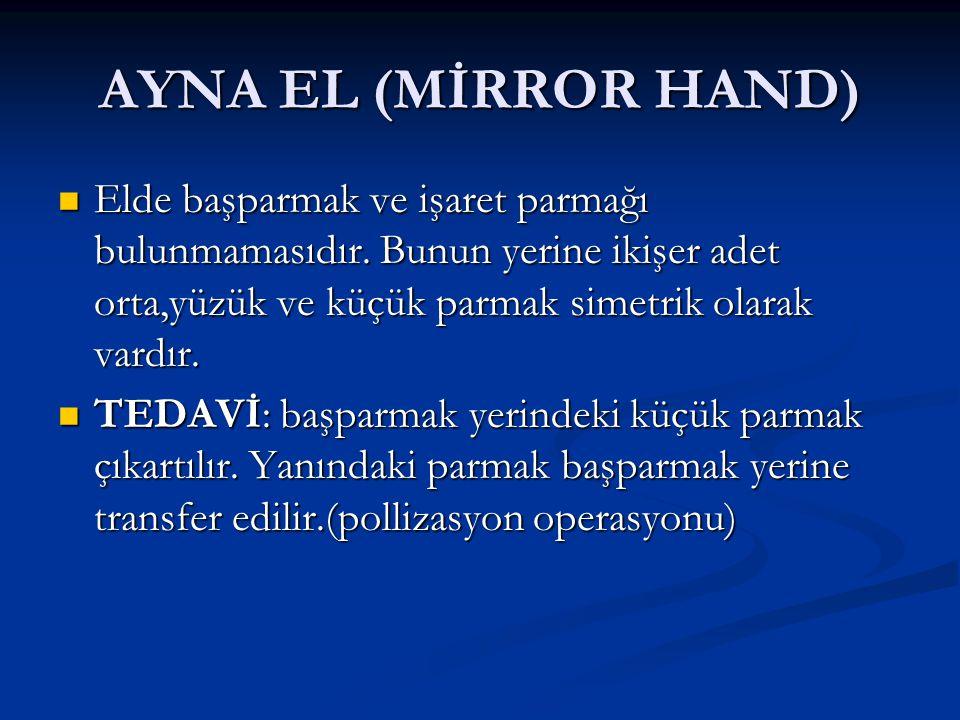 AYNA EL (MİRROR HAND) Elde başparmak ve işaret parmağı bulunmamasıdır. Bunun yerine ikişer adet orta,yüzük ve küçük parmak simetrik olarak vardır.