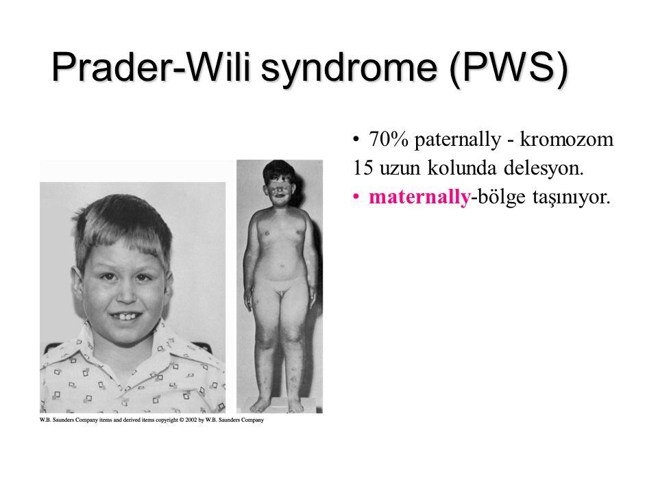 Prader-Wili syndrome (PWS)