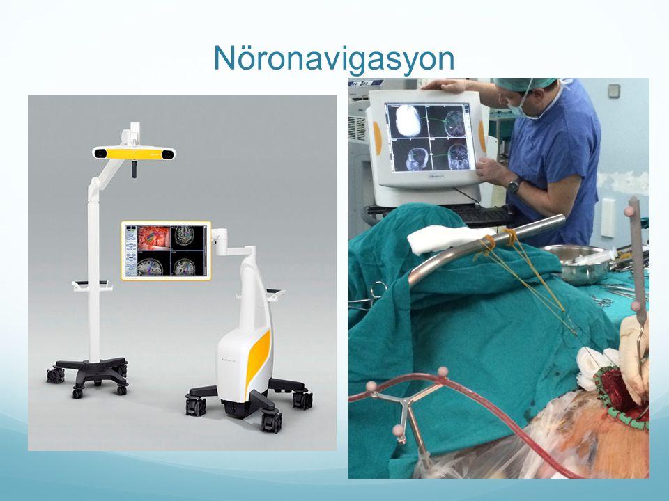 Nöronavigasyon