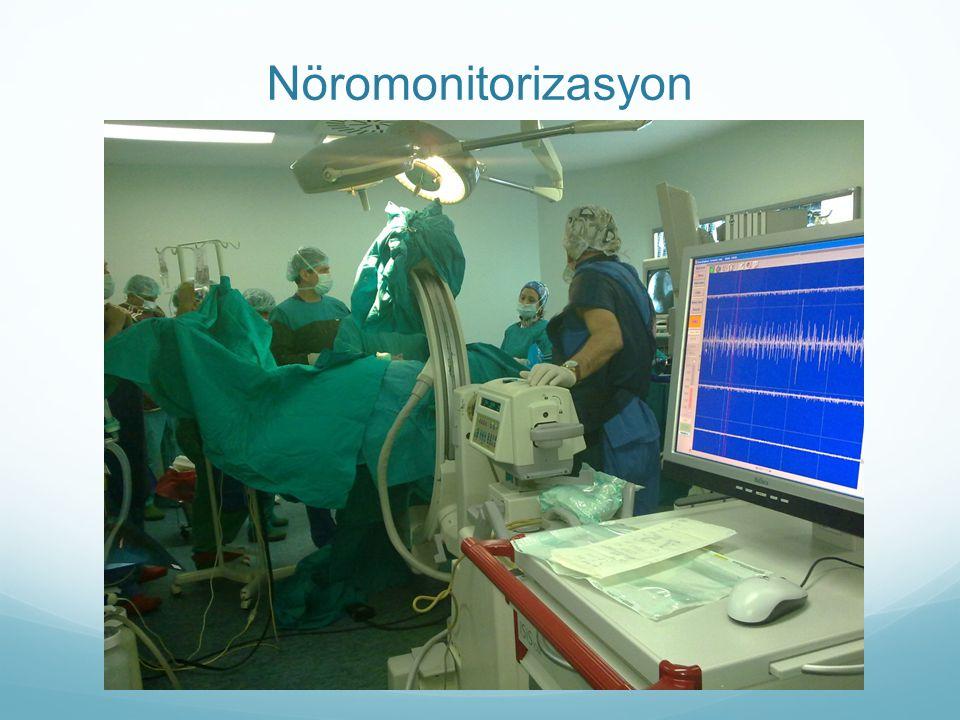 Nöromonitorizasyon