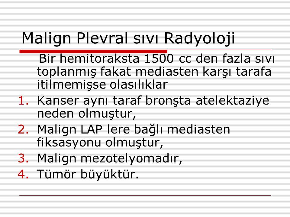 Malign Plevral sıvı Radyoloji