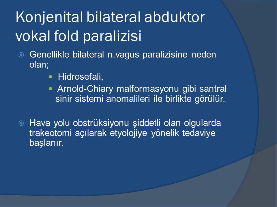 Konjenital bilateral abduktor vokal fold paralizisi