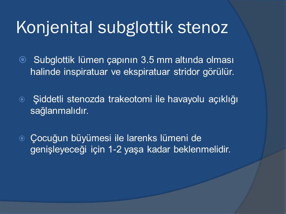 Konjenital subglottik stenoz