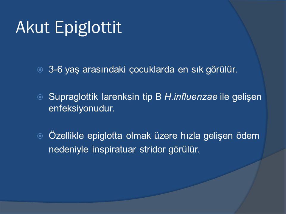 Akut Epiglottit 3-6 yaş arasındaki çocuklarda en sık görülür.