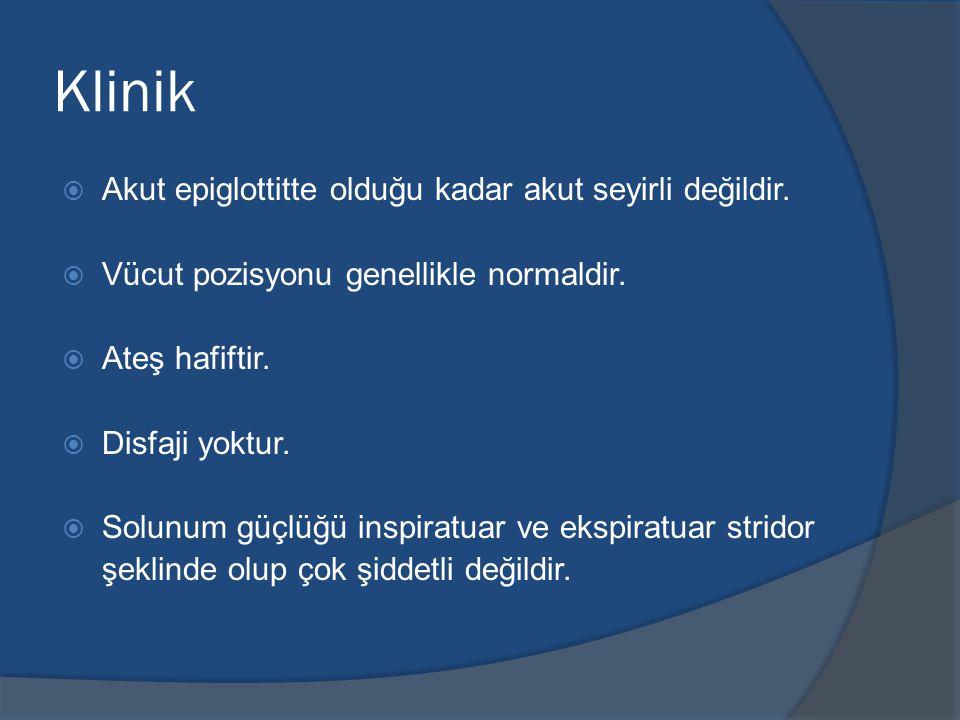 Klinik Akut epiglottitte olduğu kadar akut seyirli değildir.