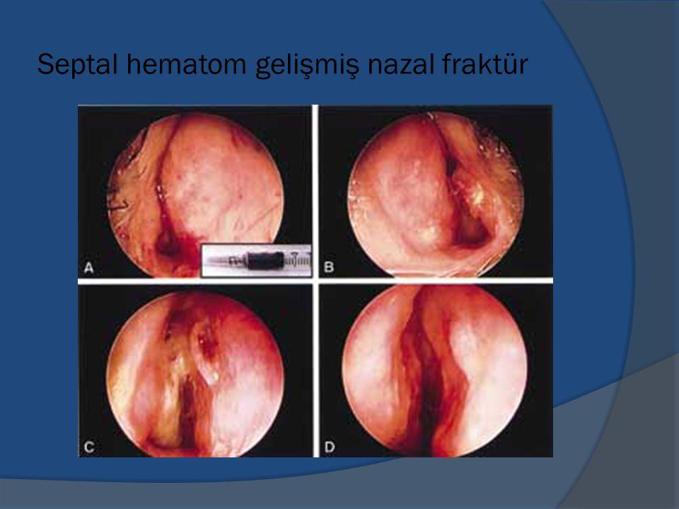 Septal hematom gelişmiş nazal fraktür