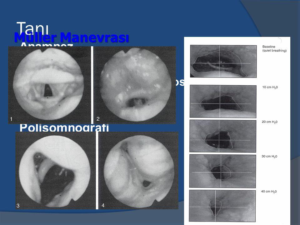 Tanı Müller Manevrası Anamnez Fizik muayene Polisomnografi Radyolojik