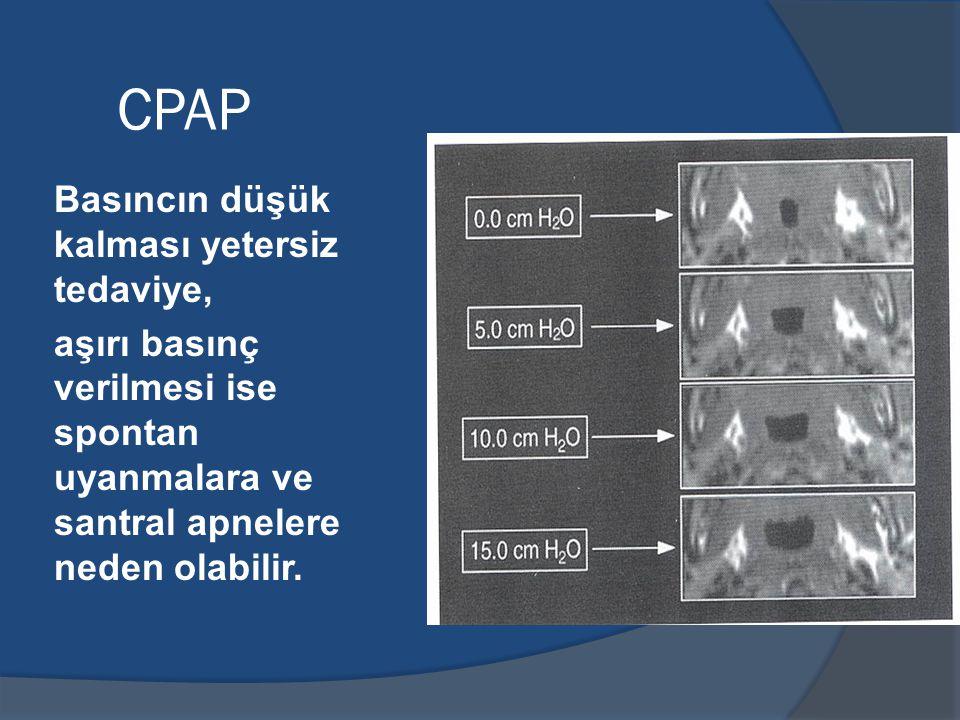 CPAP Basıncın düşük kalması yetersiz tedaviye,