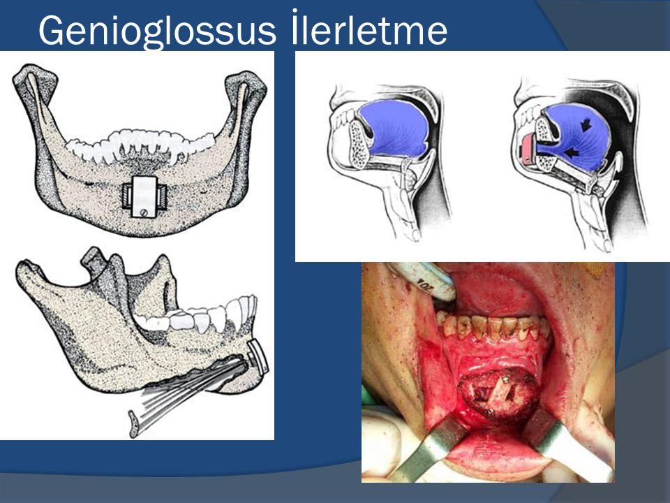 Genioglossus İlerletme