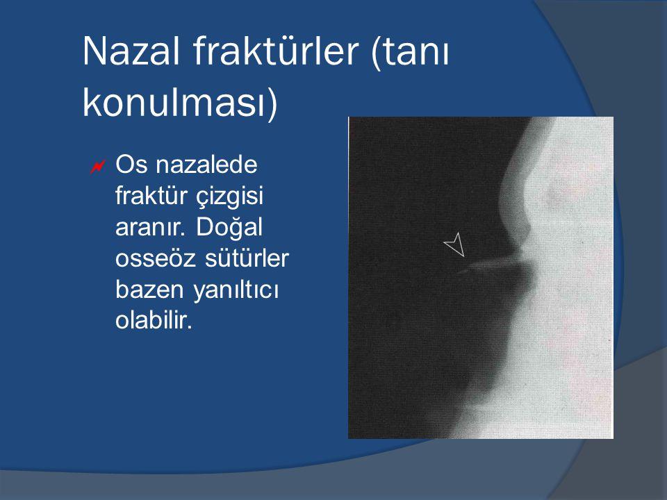 Nazal fraktürler (tanı konulması)