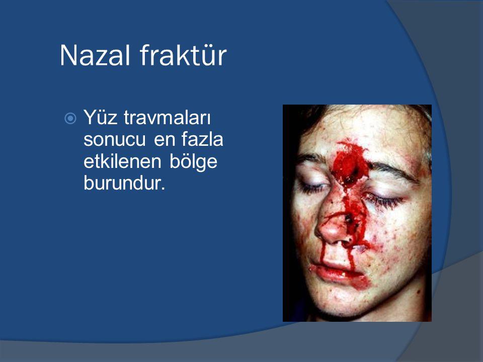 Nazal fraktür Yüz travmaları sonucu en fazla etkilenen bölge burundur.