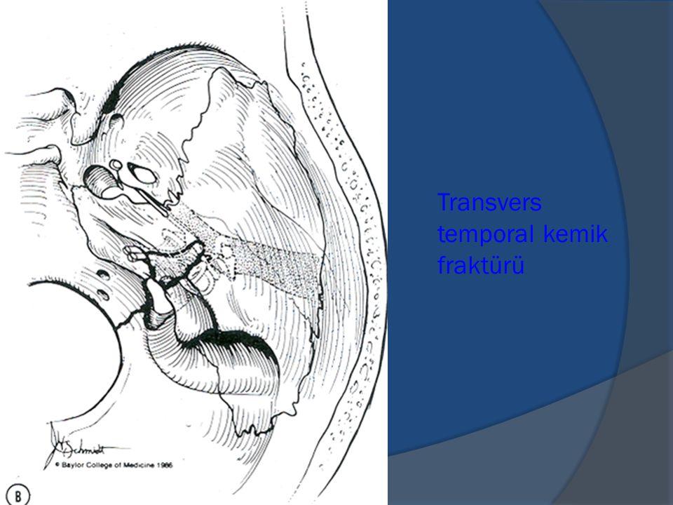 Transvers temporal kemik fraktürü