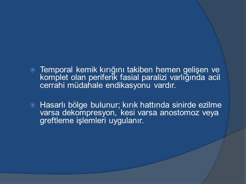 Temporal kemik kırığını takiben hemen gelişen ve komplet olan periferik fasial paralizi varlığında acil cerrahi müdahale endikasyonu vardır.