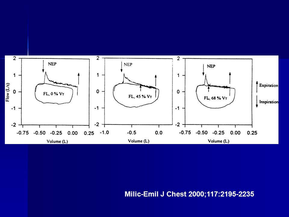 Milic-Emil J Chest 2000;117:2195-2235