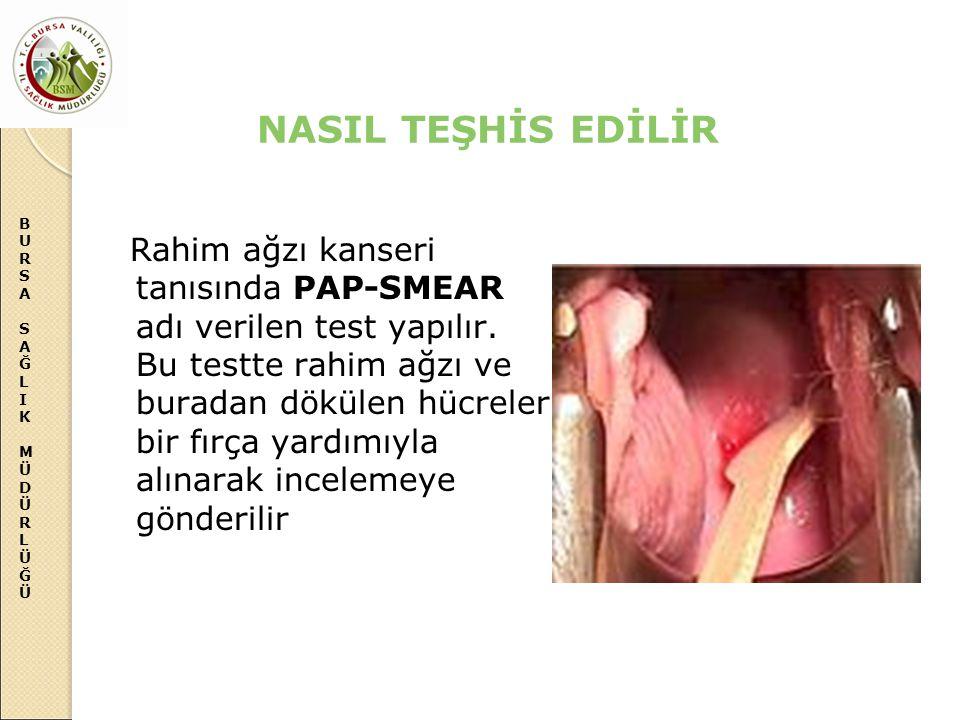 NASIL TEŞHİS EDİLİR
