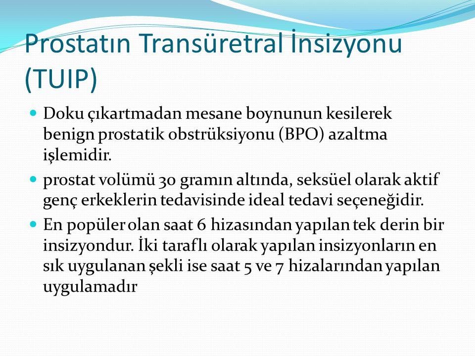 Prostatın Transüretral İnsizyonu (TUIP)