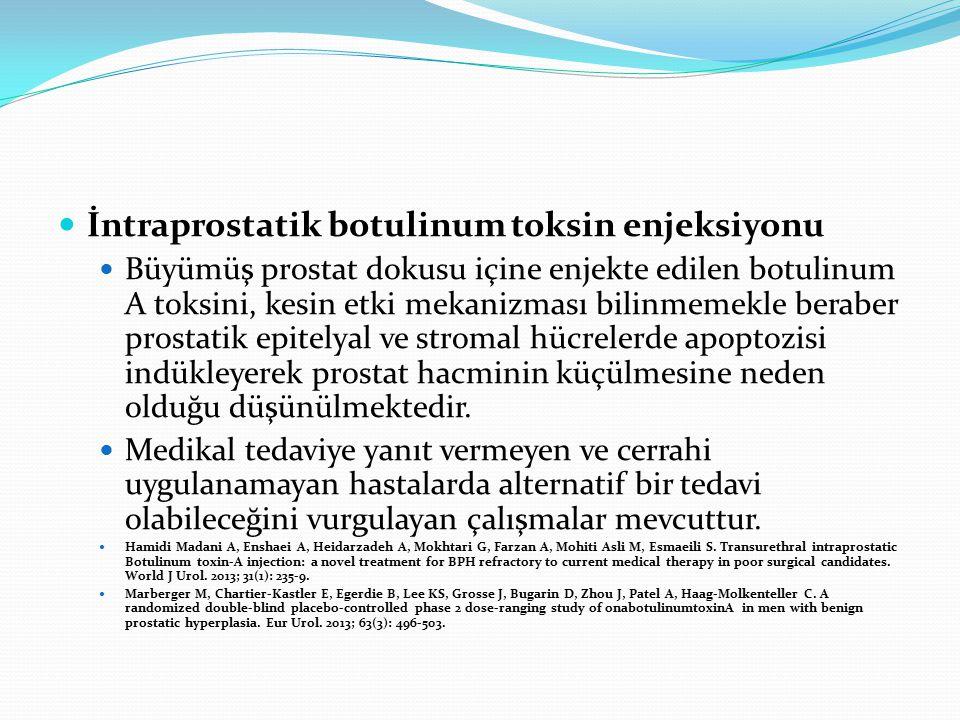 İntraprostatik botulinum toksin enjeksiyonu