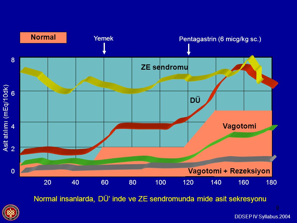 Normal ZE sendromu DÜ Vagotomi Vagotomi + Rezeksiyon