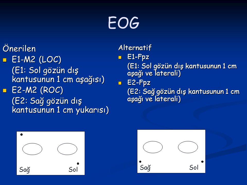 EOG Önerilen E1-M2 (LOC) (E1: Sol gözün dış kantusunun 1 cm aşağısı)