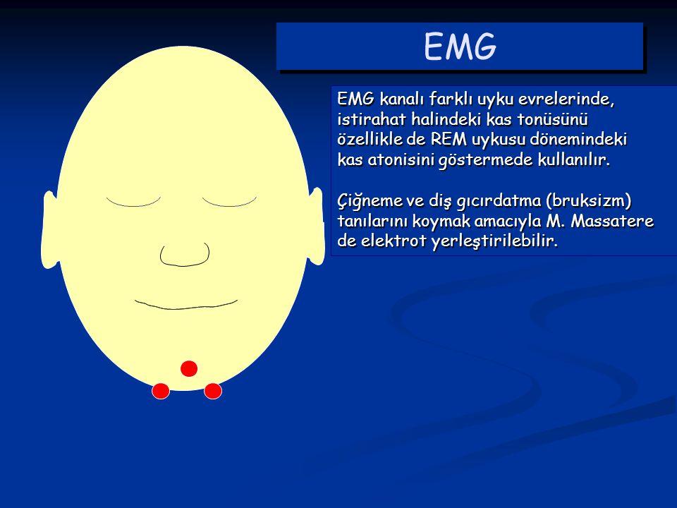 EMG EMG kanalı farklı uyku evrelerinde,