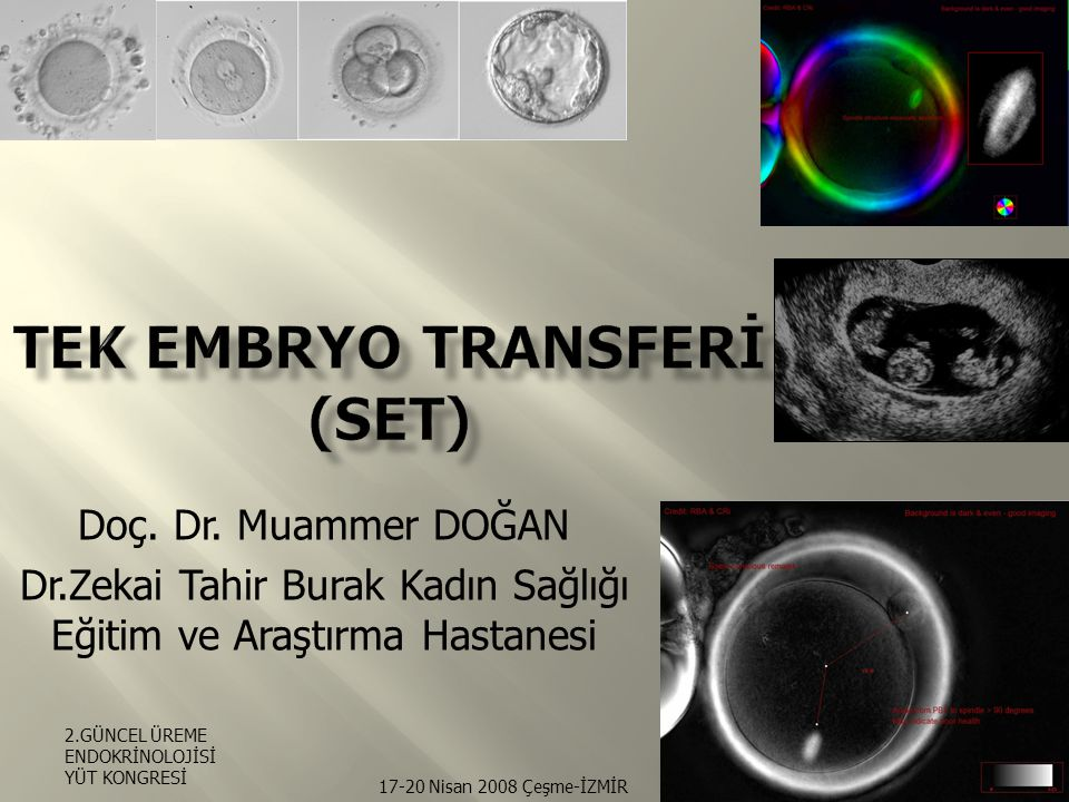 Tek Embryo Transferİ (SET)