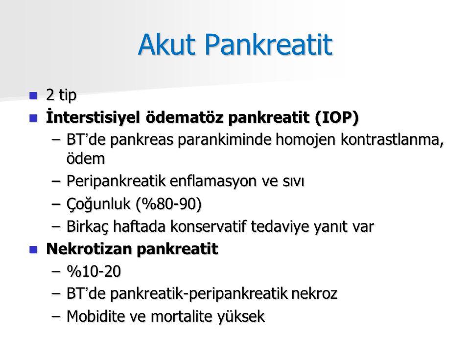 Akut Pankreatit 2 tip İnterstisiyel ödematöz pankreatit (IOP)
