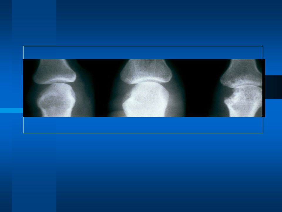 Anti-TNF Ajanların Hepsi RA'da Radyolojik Progresyonu Yavaşlatır/Durdururlar