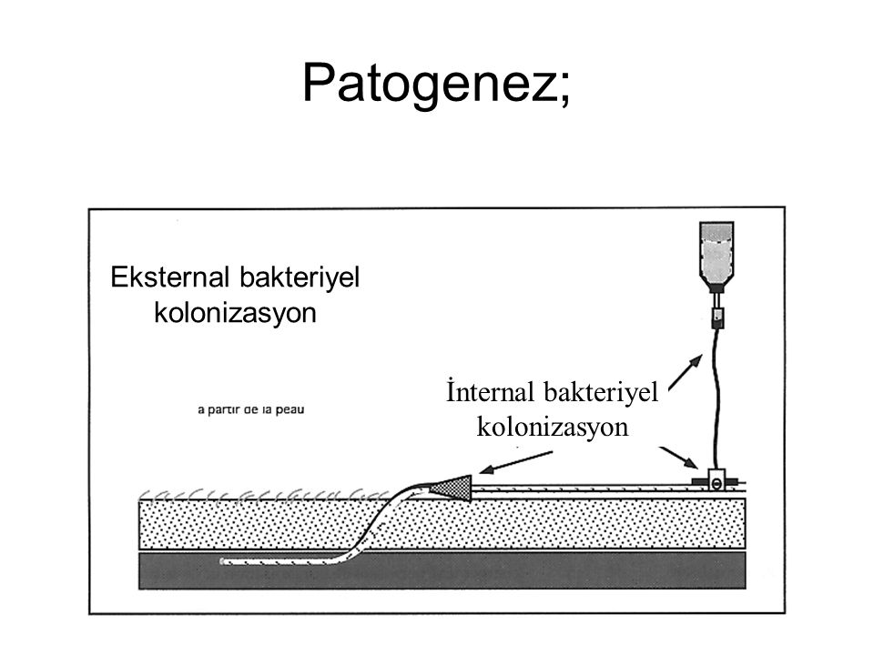 Patogenez; Eksternal bakteriyel kolonizasyon İnternal bakteriyel