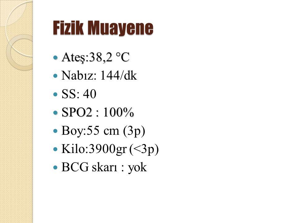 Fizik Muayene Ateş:38,2 °C Nabız: 144/dk SS: 40 SPO2 : 100%