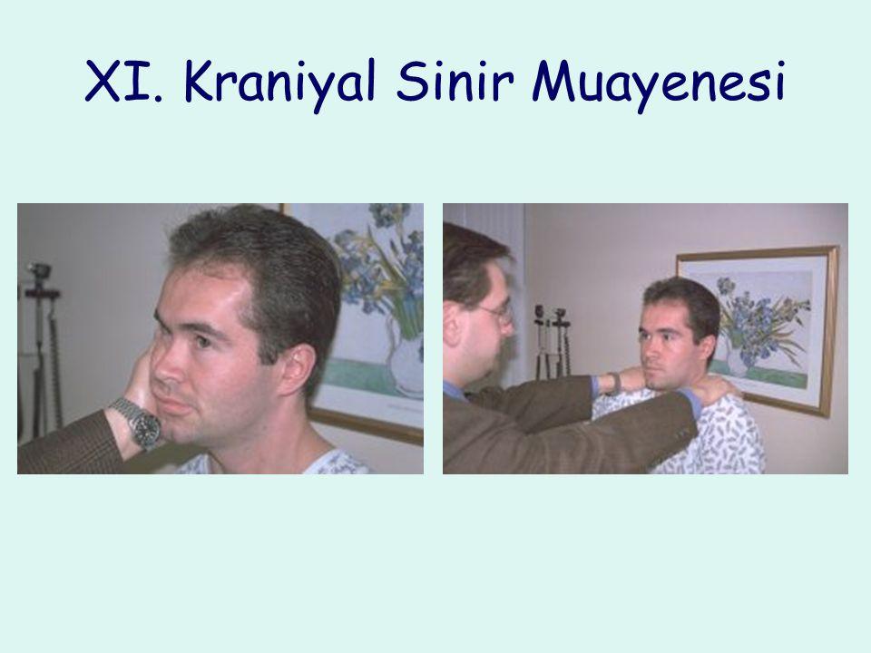 XI. Kraniyal Sinir Muayenesi