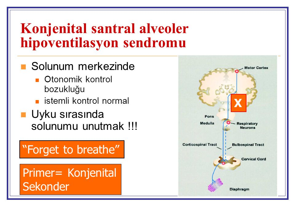 Konjenital santral alveoler hipoventilasyon sendromu