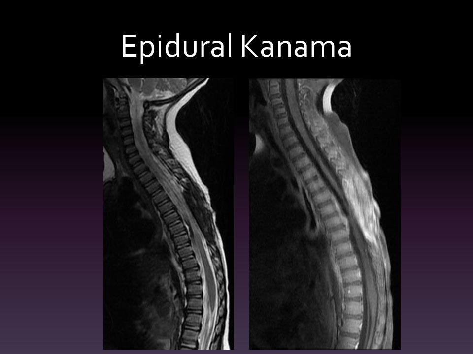 Epidural Kanama