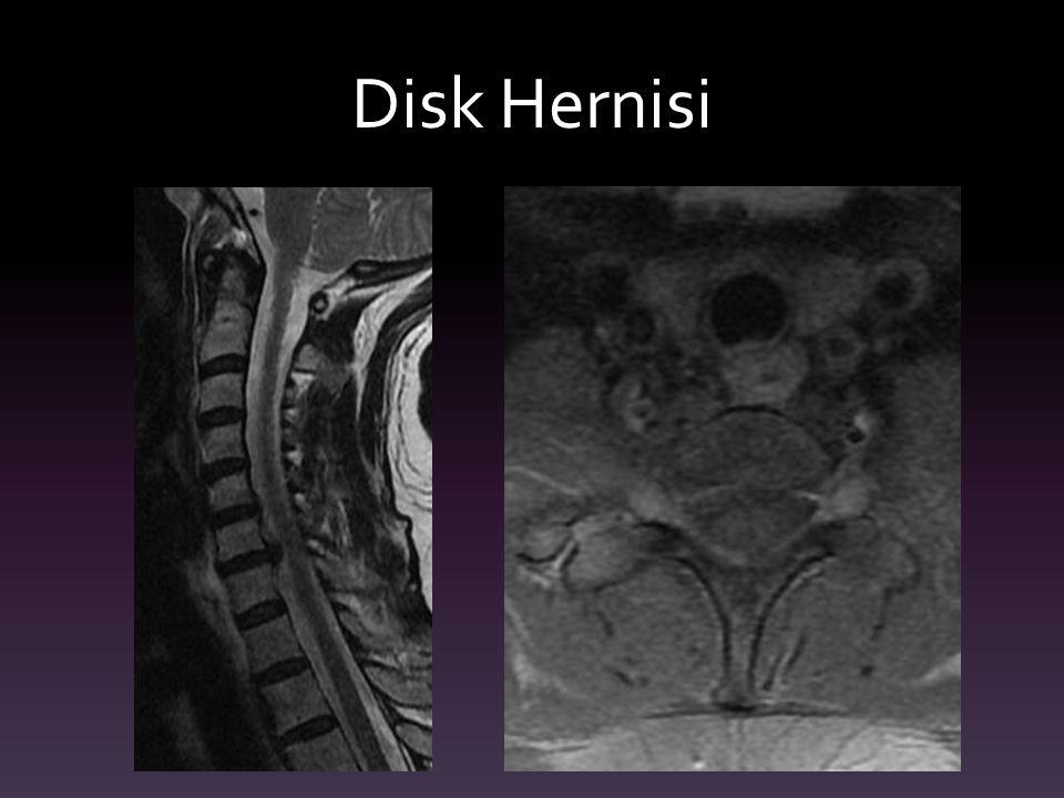 Disk Hernisi