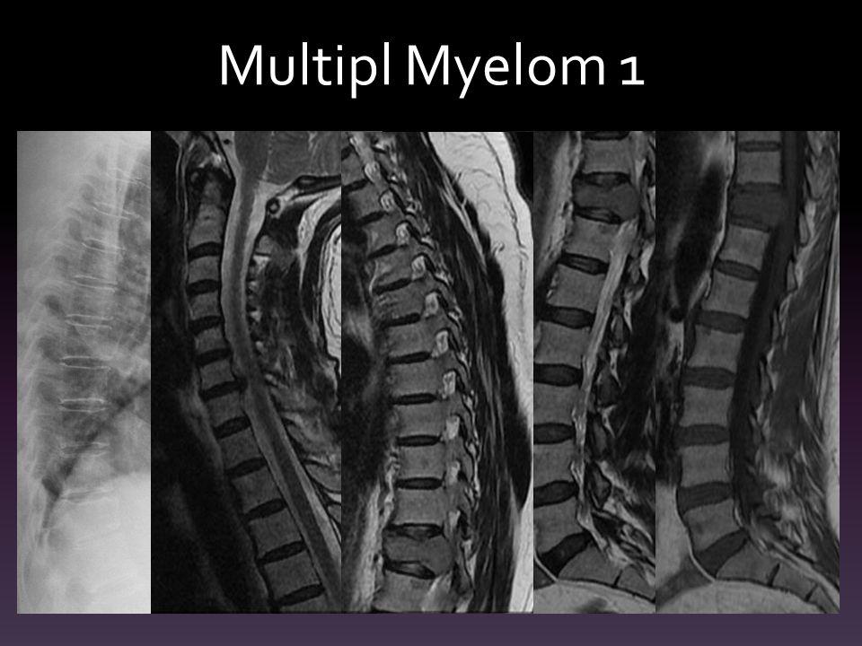 Multipl Myelom 1