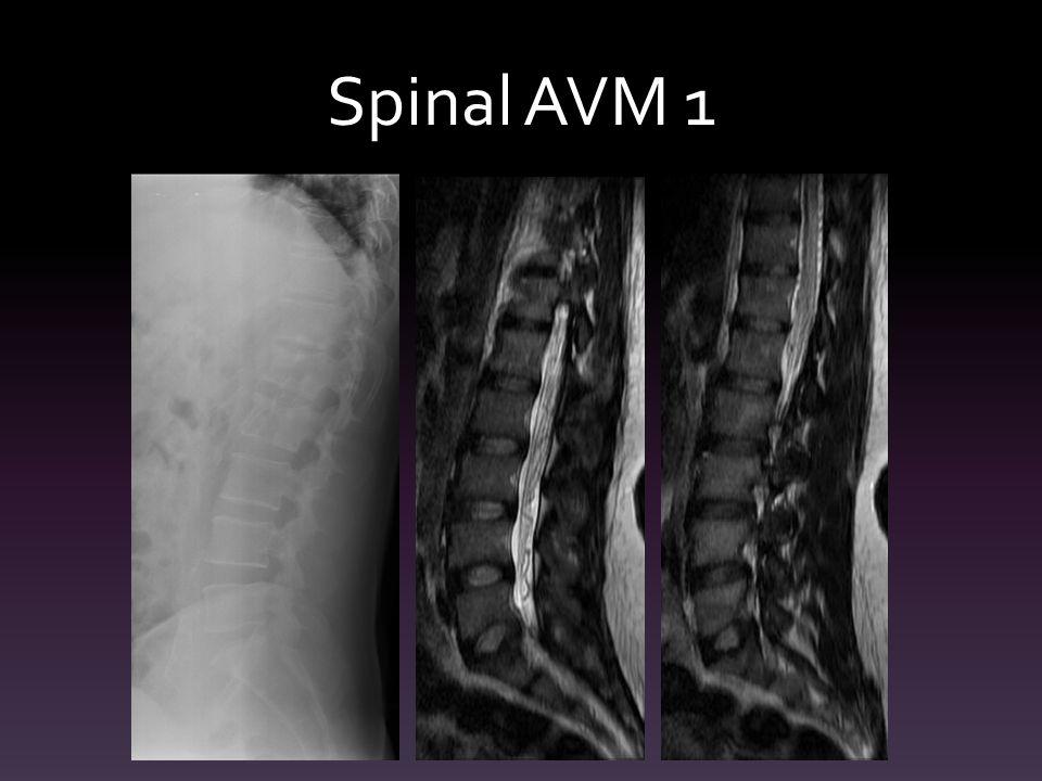 Spinal AVM 1