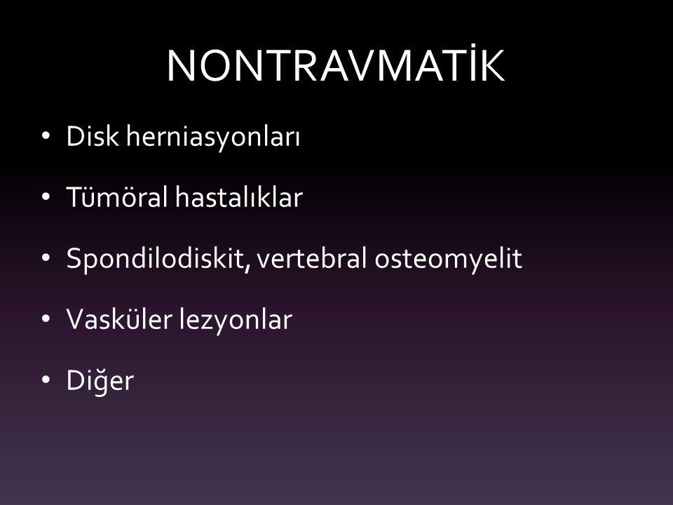 NONTRAVMATİK Disk herniasyonları Tümöral hastalıklar