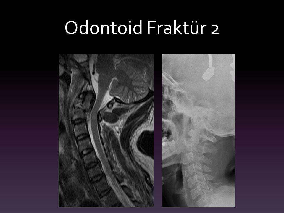 Odontoid Fraktür 2