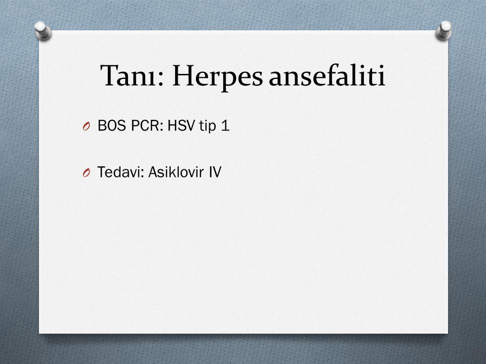 Tanı: Herpes ansefaliti