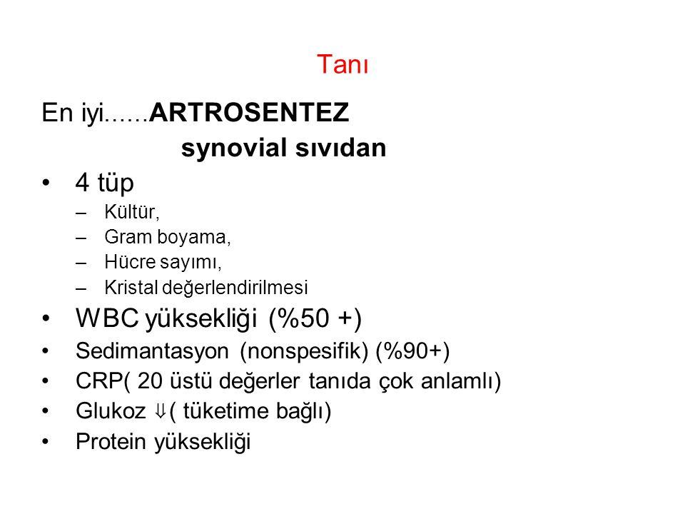 Tanı En iyi……ARTROSENTEZ synovial sıvıdan 4 tüp WBC yüksekliği (%50 +)