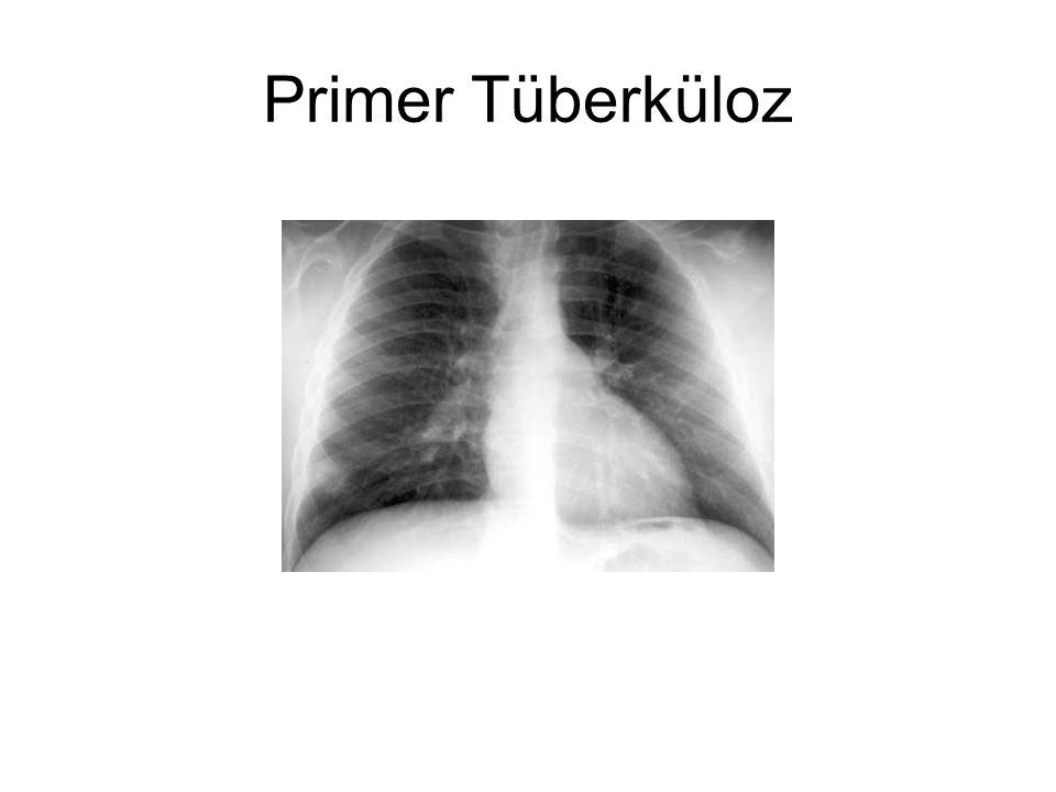 Primer Tüberküloz