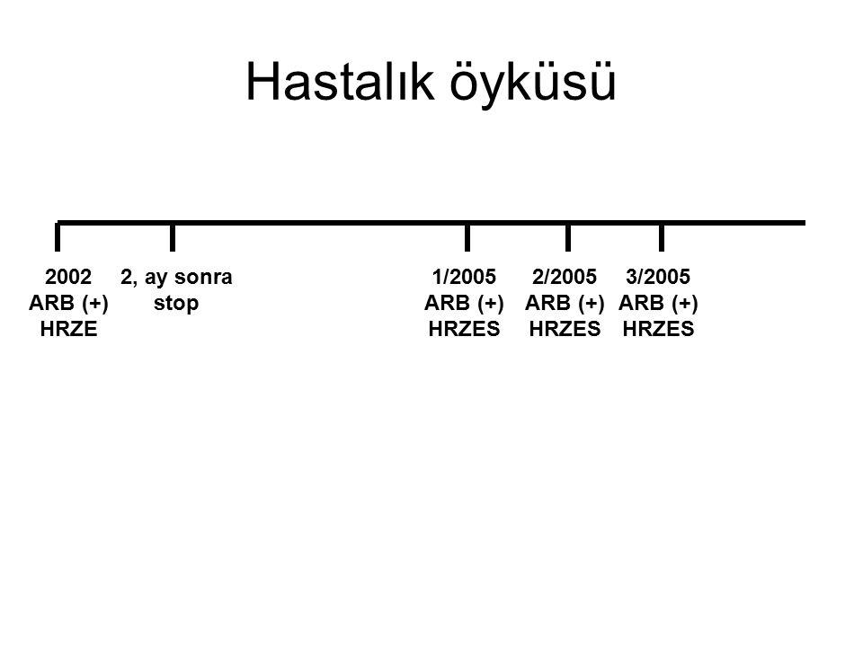 Hastalık öyküsü 2002 ARB (+) HRZE 2, ay sonra stop 1/2005 ARB (+)