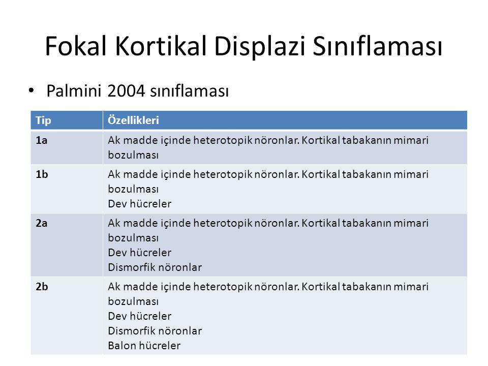 Fokal Kortikal Displazi Sınıflaması