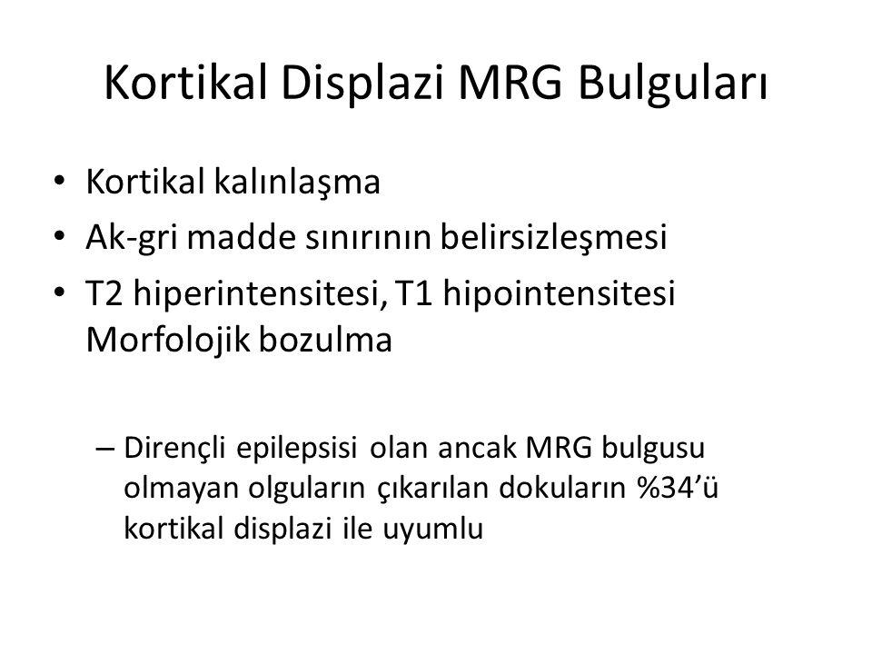 Kortikal Displazi MRG Bulguları