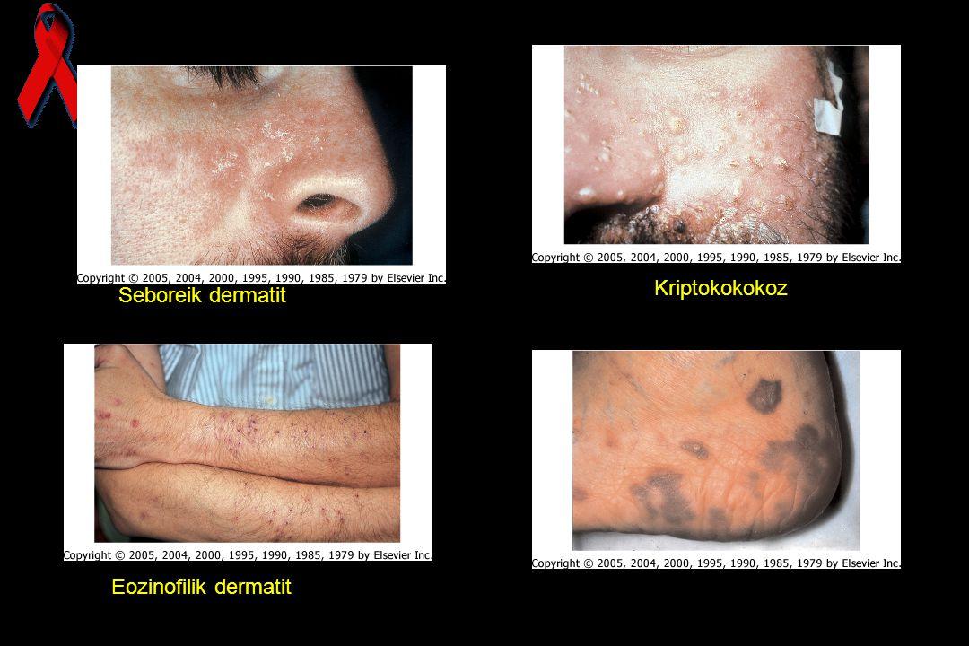 Kriptokokokoz Seboreik dermatit Kaposi sarkomu Eozinofilik dermatit 70