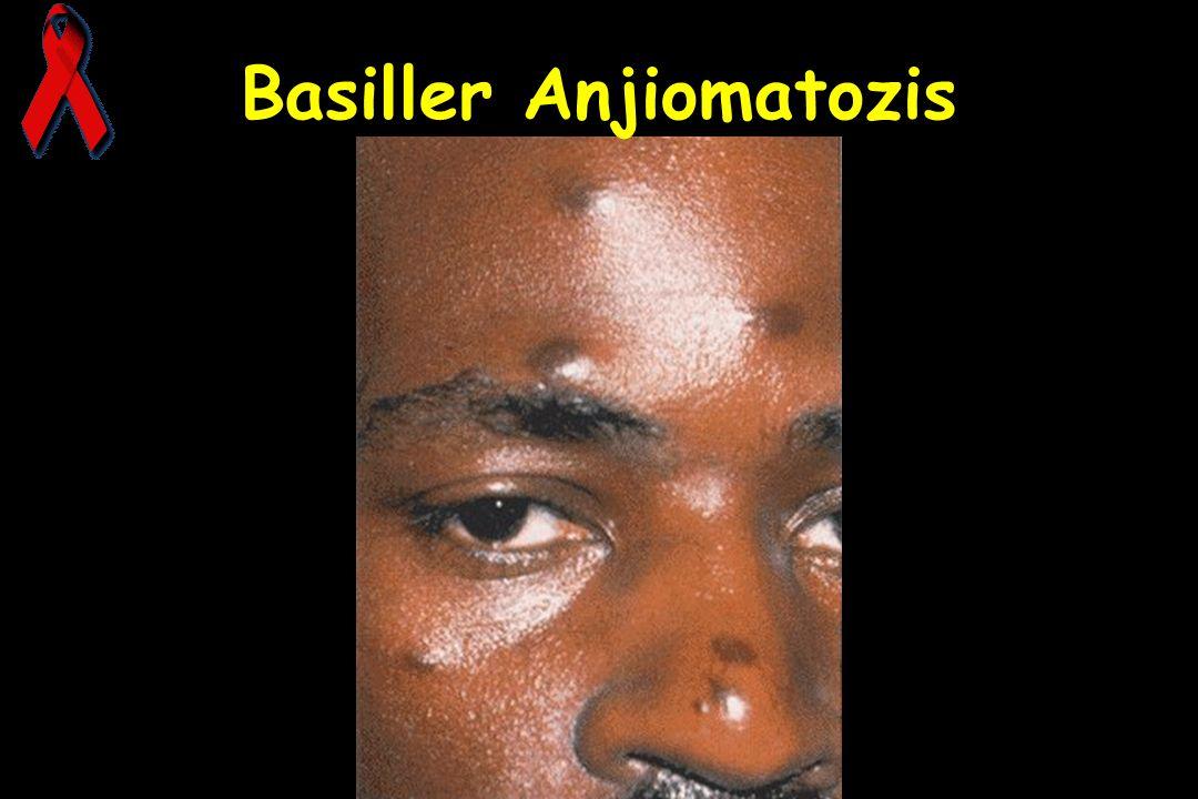 Basiller Anjiomatozis